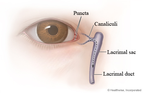 Causes Blocked Tear Ducts Adults With Braces